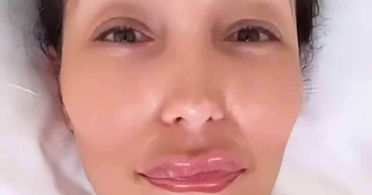 """Caterina Balivo lascia tutti a bocca aperta, posta una foto con zigomi gonfi e labbra a canotto e dice: """"Sono …"""""""